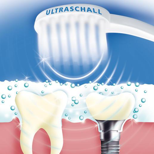 """96 Millionen Luftschwingungen pro Minute schäumen die spezielle Ultraschall-Zahncreme mikrofein auf. Beim Implodieren der Bläschen werden Speisereste, Plaque, Bakterien, ... und Verfärbungen sanft entfernt. (Dies funktioniert leider nicht mit einer """"normalen"""" Zahncreme.)"""